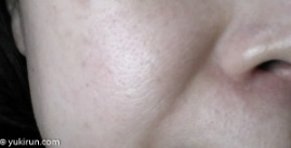 画像: 塗る前…毛穴と肌荒れが目立つヤバイ肌